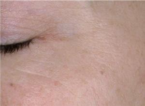 Hautbild nach der Behandlung